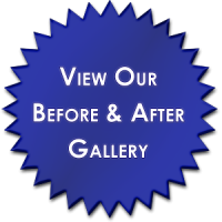 before-and-after-gallery